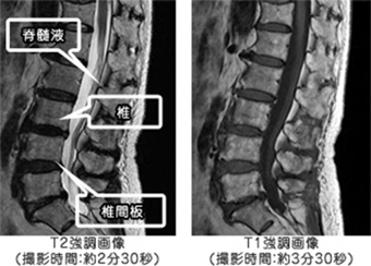 頸椎 硬 膜 外 膿瘍 硬膜外ブロック後,広 範囲硬膜外膿瘍をきたした1症
